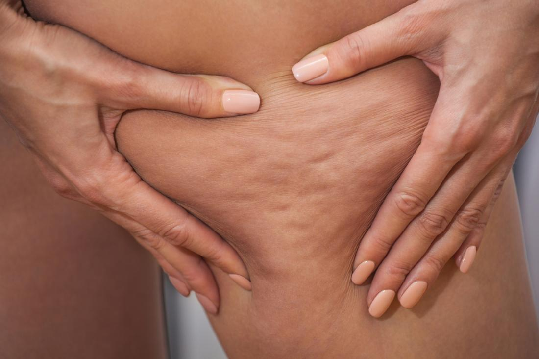What causes unwanted clusters of cellulite to show through the skin? Is there any way to get rid of unwanted fat once and for all? Learn more today with Charmelle London