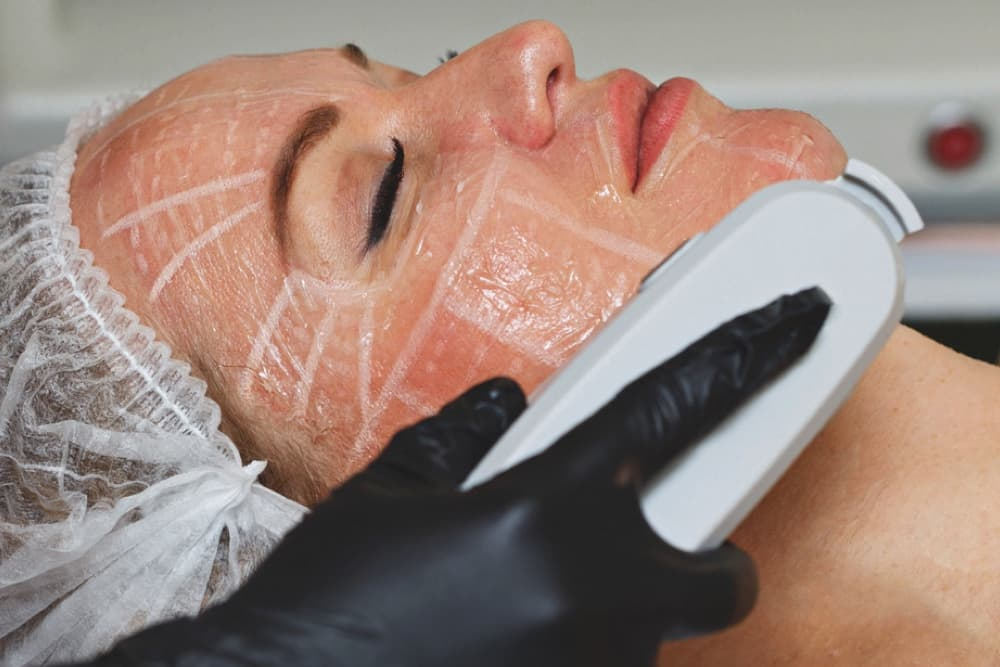 Non-surgical Skin Lifting has become one of the most sought after treatments, and HIFU is the latest to excel in this arena in just one single session!