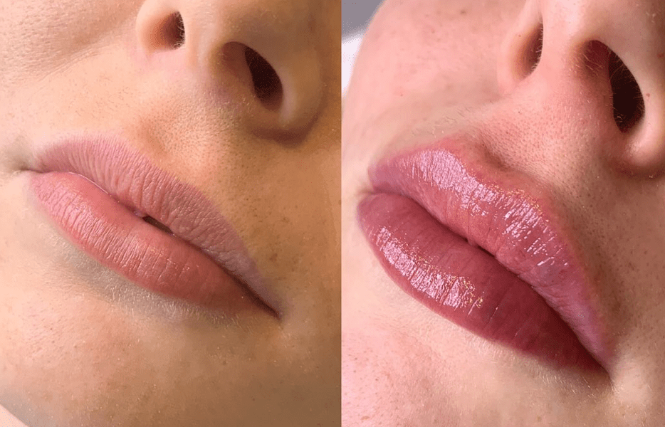 £40 Off Revolax 1ML Lip Fillers