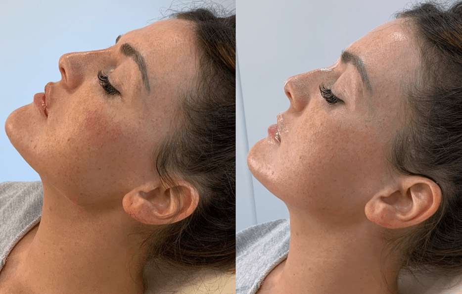 Dermal fillers work by re-shaping the jawline to achieve better shape, proportions and definition to rejuvenate your appearence to be more youthful