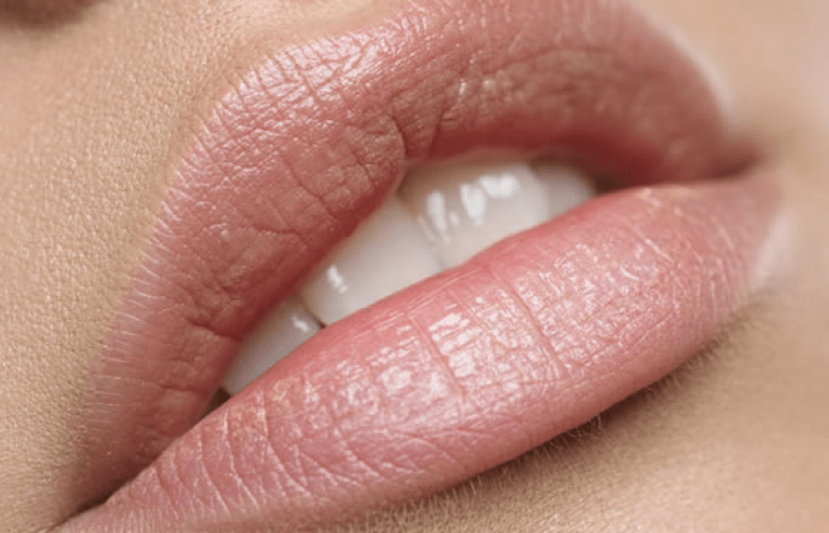 Lips Retouch (12-18 months)