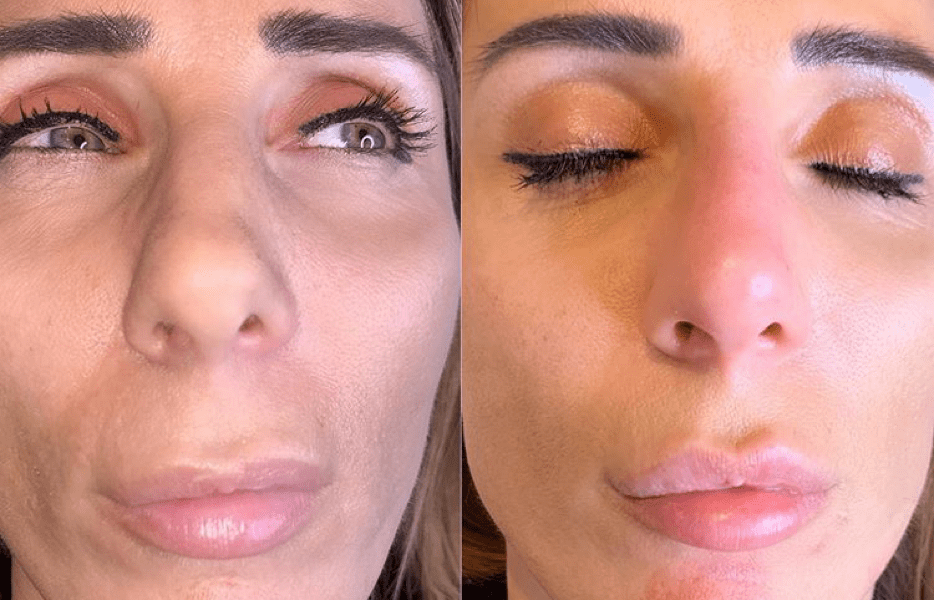 """The nasolabial fold is the deep crease running from either side of the nose down towards the corners of the mouth. This crease becomes more noticeable as part of the natural ageing process. Fat is lost from the cheeks, reducing skin volume and making this fold appear deeper. Repeated smiling or having a """"big smile"""" may result in permanent, deep creases in this area."""
