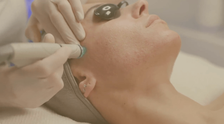 Watch our video to learn more about the treatments at Charmelle London